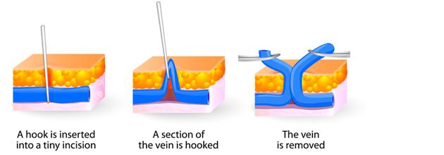 Ambulatory Phlebectomy Reseda CA